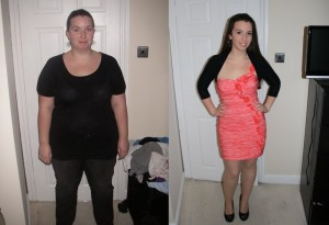 gastric sleeve story
