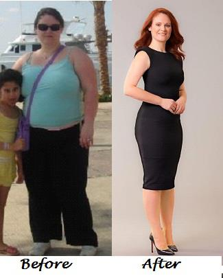 angela_gastric_bypass